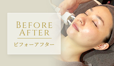 Before After ビフォーアフター